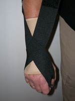 Add a Wrist Splint